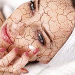 乾燥肌でできてしまったシワには浸透力のあるスキンケア化粧品で改善